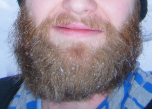 The ice-in-the-beard